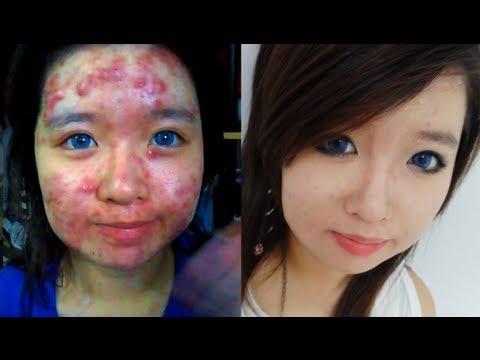 cacher-son-acne-avec-mauillage